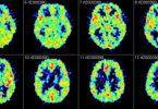 Información básica de Neurociencias: presentación del proyecto - Ciencia