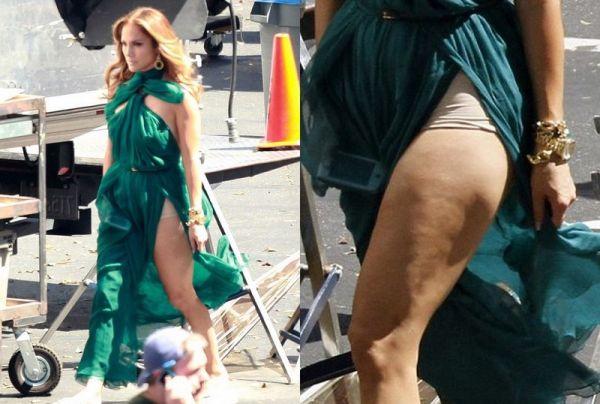 Celulitis Jennifer Lopez